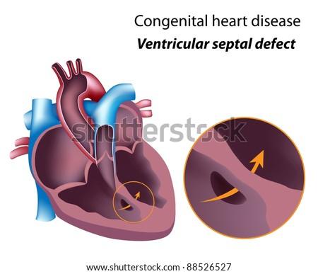 Congenital heart disease: ventricular septal defect - stock photo