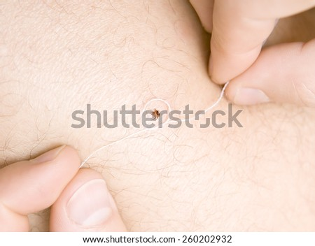 correct removing a tick with thread from skin of patient - stock photo