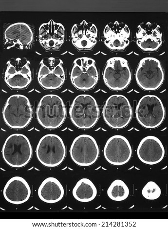 CT brain scan non-contrasted in a 65 years old man with right facial palsy: Demonstrated Hypodense lesion involving subcortical and deep white matter of the right frontotemporal and left frontal lobes - stock photo