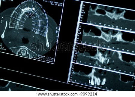 CT Dental Tomography - stock photo