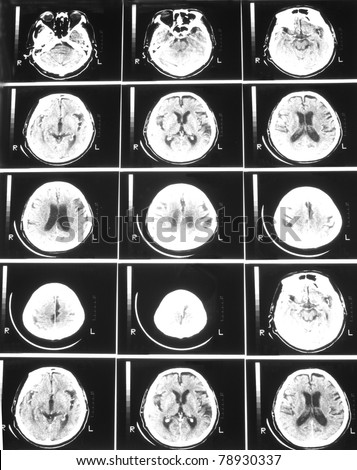 CT scan brain of an adult man, demonstrated moderate diffuse cerebral atrophy and minimal widening ventricular system without midline shift