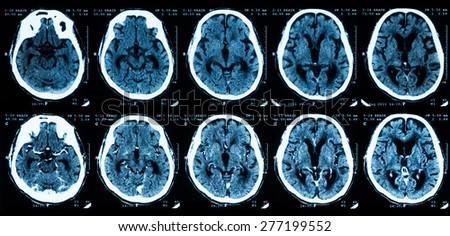 CT scan of brain, comparison between without and with contrast media.