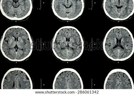 CT scan of brain show normal brain ( Neurological background ) - stock photo