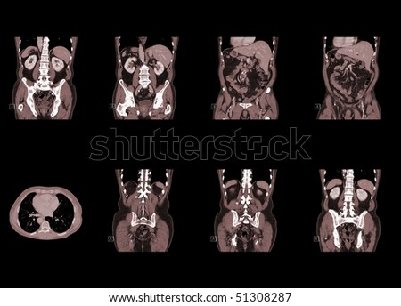 ct scan of human body isolated on black background - stock photo