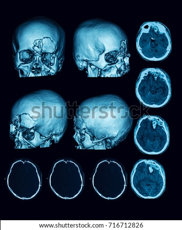 CT- scan of multiple fractures of skull and Intracerebral (intraparenchymal) hematoma