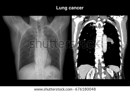 essay of lung cancer Cigarette smoking, lung cancer, and the role played by polonium 210 in five pages this paper discusses lung tissue and the role played by polonium 210 in the development of lung cancer caused by tob lung cancer in men and pain management through narcotics the 5 year mark after diagnosis (kreamer, 2003.