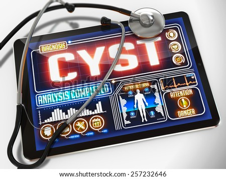 Cyst - Diagnosis on the Display of Medical Tablet and a Black Stethoscope on White Background.