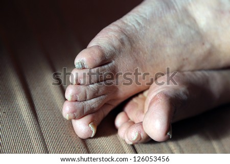 damaged nails of woman's feet - stock photo