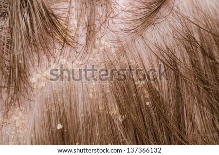 Dandruff in the hair of a person - stock photo