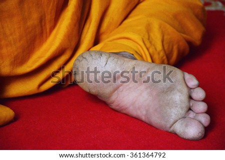 dehydrated skin on the heels of monk - stock photo