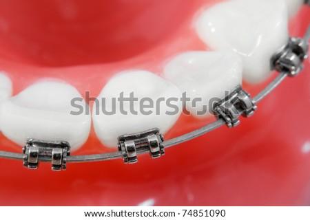 Dental braces macro - stock photo