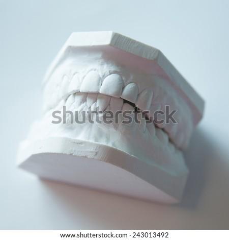 Dental casting gypsum model plaster cast stomatologic human jaws prothetic laboratory, technical shots - stock photo
