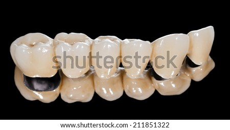 Dental ceramic bridge on isolated black background - stock photo