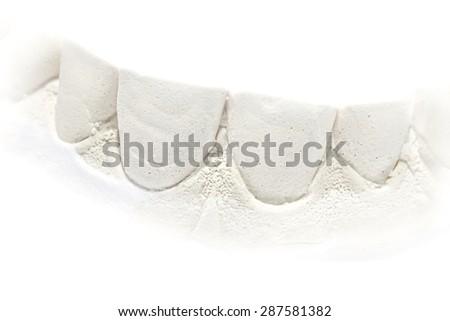 Dental gypsum model cast, human lower jaw, isolated on white. - stock photo