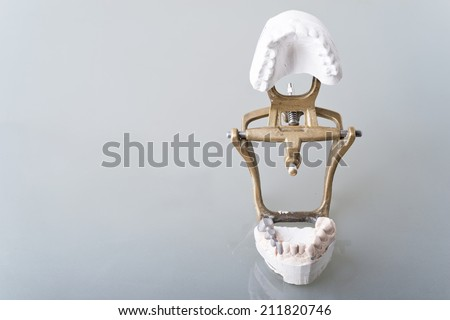dental gypsum models on table - stock photo