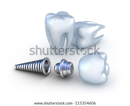 Dental implant and teeth, isolated on white - stock photo
