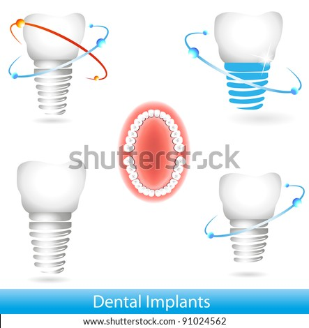 Dental implants. Beautiful bright colors - stock photo