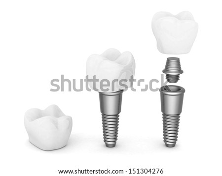 Dental implants isolated on white background - stock photo