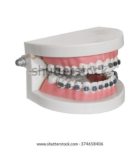 Dental jaw model isolated on white background - stock photo