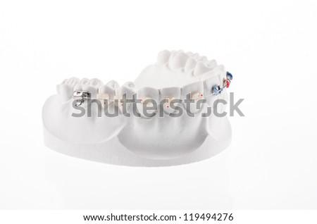 Dental lower jaw bracket braces model isolated on white - stock photo