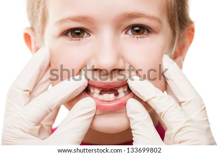 Dental medicine and healthcare - child patient open mouth showing first baby milk or temporary teeth fall out - stock photo