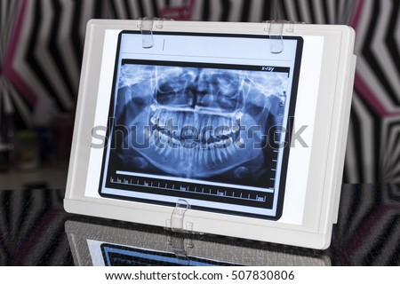 Dental Panoramic x-ray in Viewer with Reflection