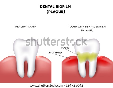 Dental plaque with inflammation and healthy tooth on a white background - stock photo
