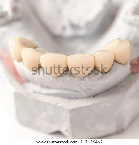 Dental Prothetic laboratory, technical shots - stock photo