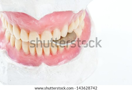 dental prsothesis ona  gypsum model biting   a coin - stock photo
