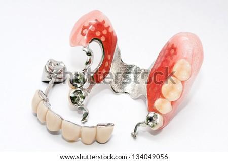 Dental skeletal prosthesis isolated in white background - stock photo