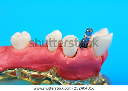 Dental titanium implant implanted in jaw bone isolate in blue - stock photo