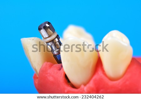 Dental tooth implant implanted in jaw bone, close up