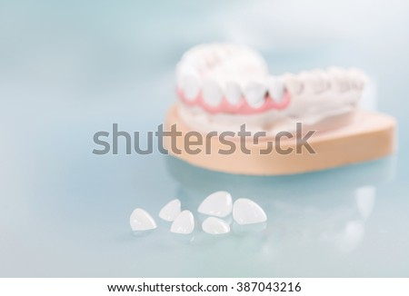 Dental veneers are lying on a blue background in the laboratory. - stock photo
