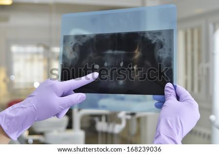 Dentist holding and analyzing dental x ray, orthopantomogram - stock photo