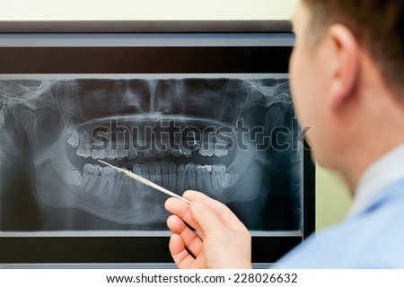 Dentist looking teeth on digital X-Ray computer monitor - stock photo