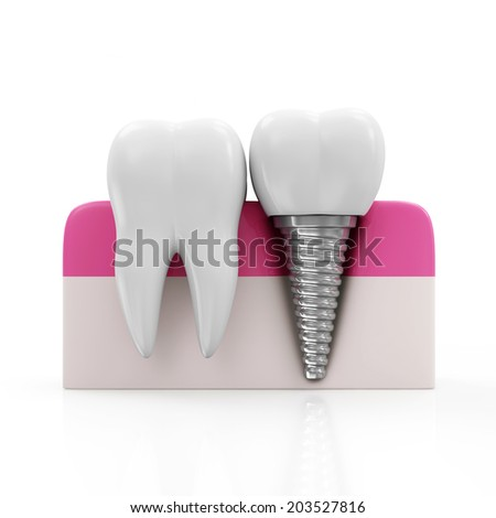 Dentistry Concept. Health Tooth and Dental implant isolated on white background - stock photo
