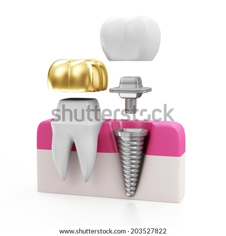 Dentistry Concept. Tooth with Golden Dental Crown and Dental implant isolated on white background - stock photo
