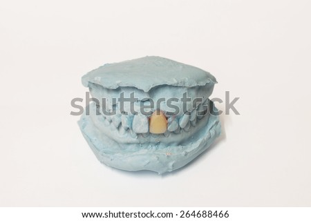 Denture and implant production: pair of dental plaster molds  - stock photo