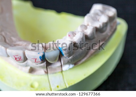 denture model in the hospital - stock photo
