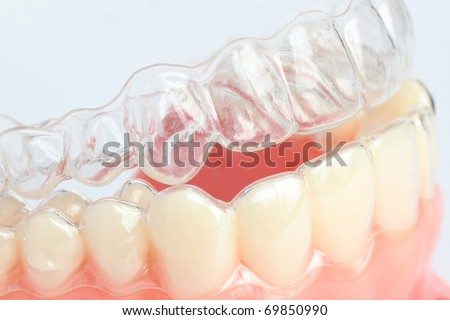 Denture with braces - stock photo