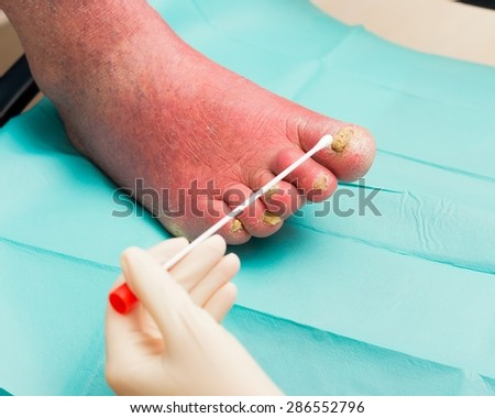 Dermatologist examining old man's nail fungus, taking samples from it.