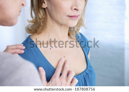 Dermatology check up with woman patient  - stock photo