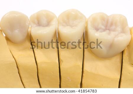 detail dental wax model - stock photo