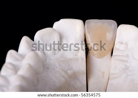 detail dental wax model ower black background - stock photo