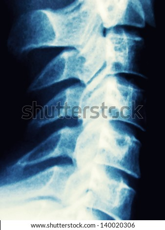 detail  of a x-ray of a human spine - stock photo