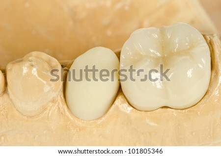 detail of ceramic crowns, one finished - stock photo