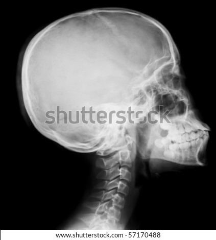 detail of neck and head x-ray image - stock photo