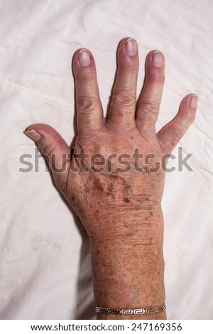 Detail of senior female hand. - stock photo