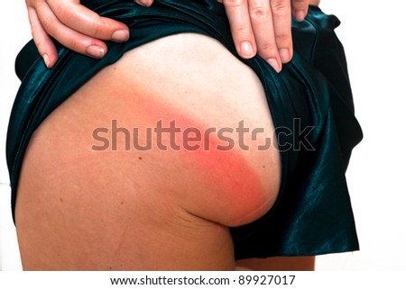 Detail of sunburn skin on the bottom. - stock photo