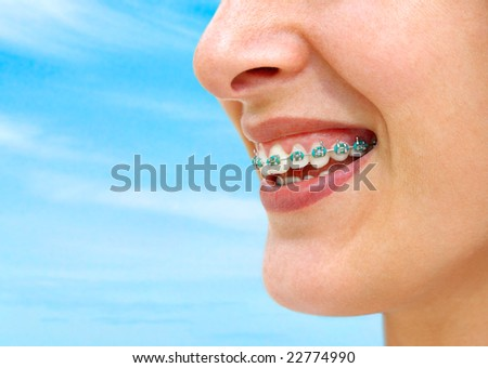 Detail of young woman smile showing white teeth with braces. - stock photo
